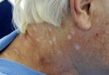 03/02/09 - Reno Man Claims Recovery From Mysterious Skin Disease